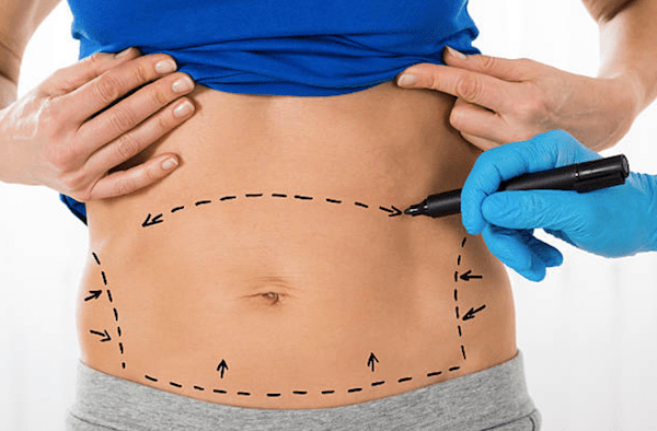 Women_Tummy Tuck in Kuwait