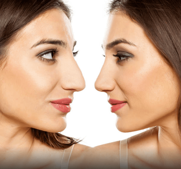 Rhinoplasty – Nose reshaping Kuwait