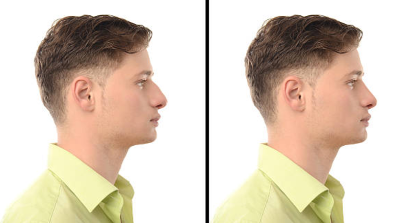 Rhinoplasty – Nose reshaping in Kuwait