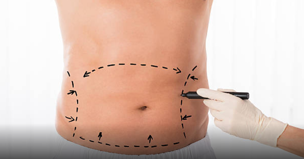 Tummy Tuck Procedure in Kuwait